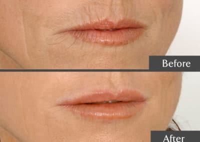 Lip Enhancements in North Lakes