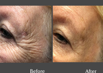 Anti – Wrinkle Injections