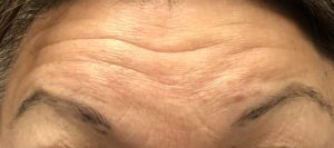 foreheadwrinkle treatments